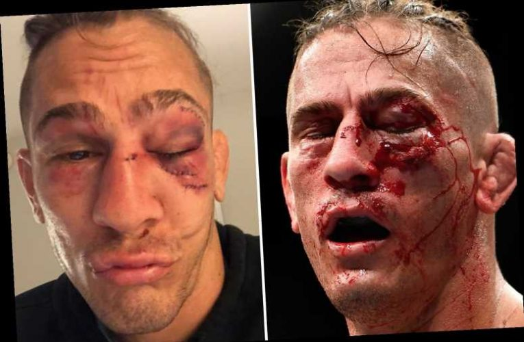 Niko Price rushed to hospital to receive stitches on gruesome eye injury and possible fracture after UFC 249 loss – The Sun