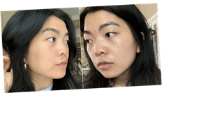 I Tried Curology For 2 Months to Clear Up My Skin, and TBH, I'm a Fan