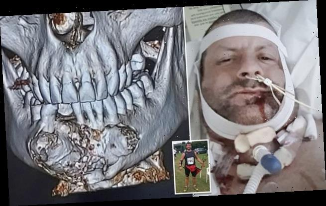 Man who didn't see a dentist in 30 years has his whole jaw removed