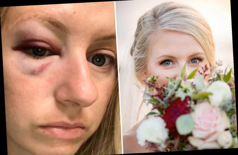 Bride shares horrific black eye she got on her wedding night after accidentally headbutting the best man
