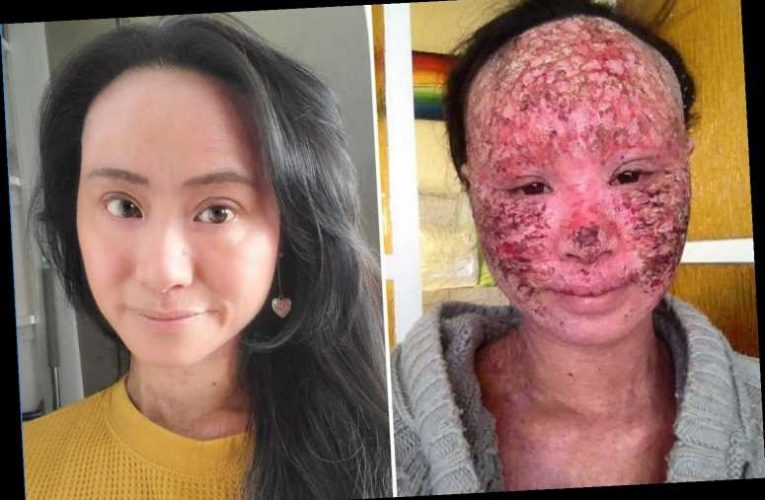 I went blind and was in so much pain it hurt to breathe due to withdrawal from eczema cream