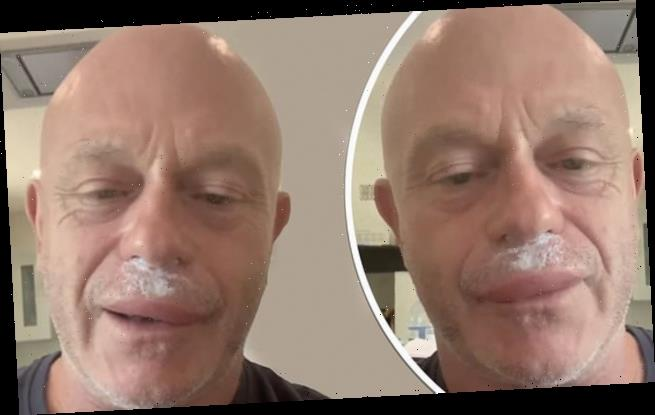 Ross Kemp looks unrecognisable following wasp attack to his face