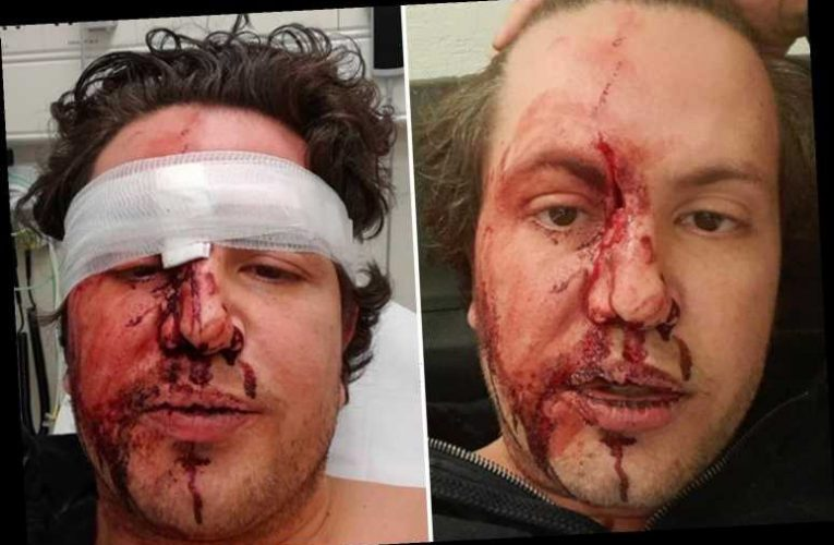 James Stunt shows horrific injuries and claims 'three gunmen broke into house, pistol-whipped him and stole £500k watch'