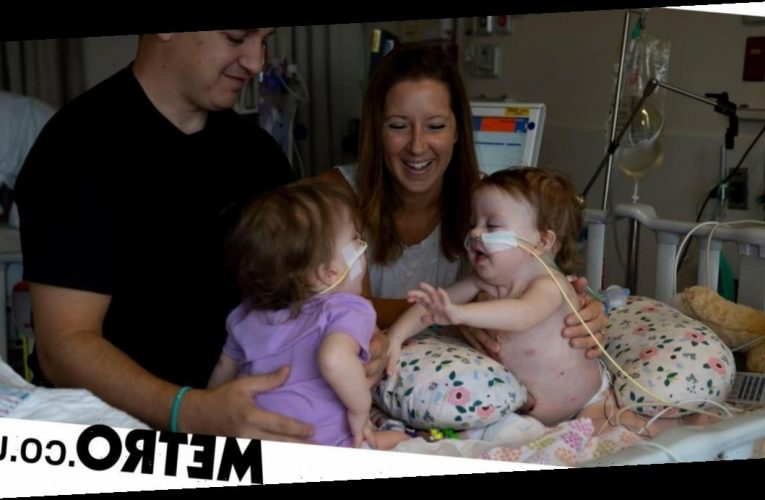 One-year-old conjoined twins successfully separated in 11-hour surgery
