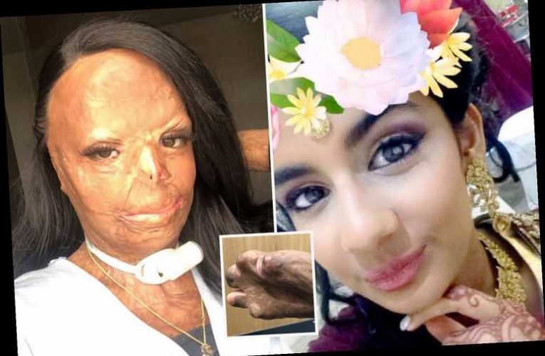 Teen, 16, suffered third degree burns after lice shampoo caught fire and engulfed her in flames