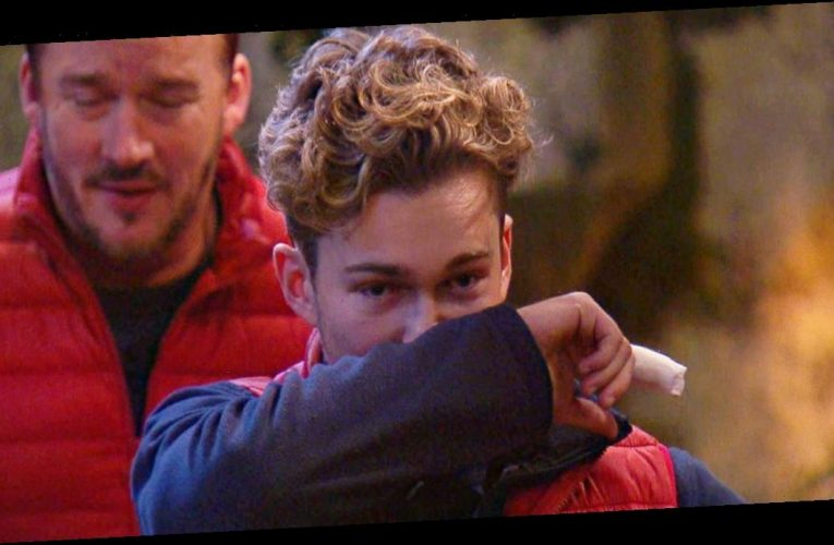 I'm A Celebrity viewers concerned as they notice AJ Pritchard's injured finger
