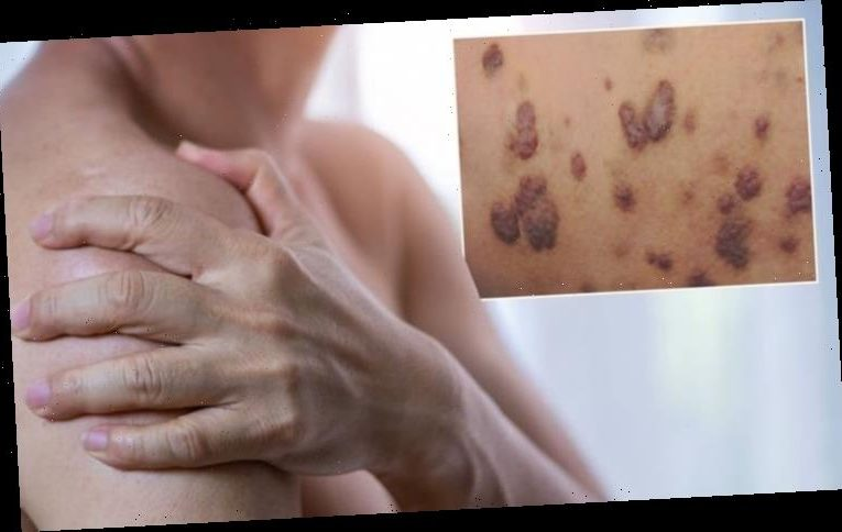 Skin cancer symptoms: Purple patches on the skin could be a sign of the deadly disease