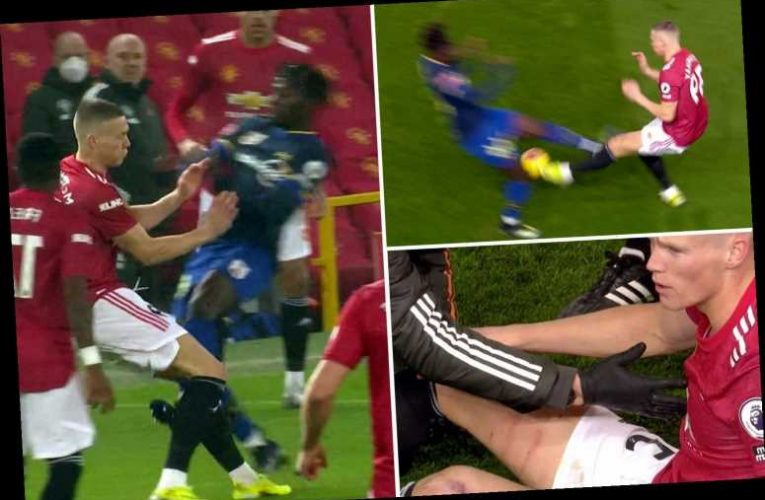 Man Utd star Scott McTominay shows off horror six inch gashes down leg after studs up tackle on him against Southampton