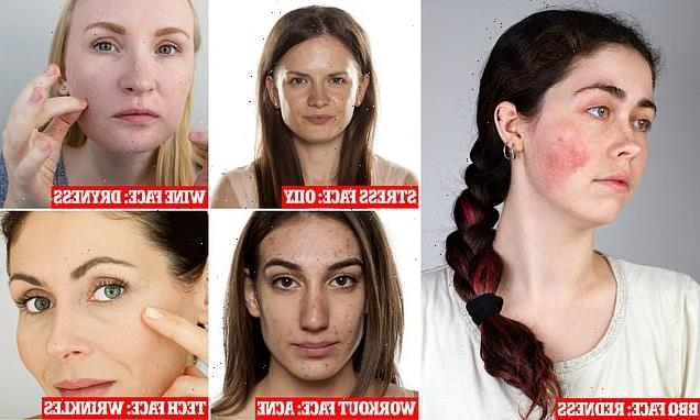 Experts reveal what you can do to tackle common skin complaints