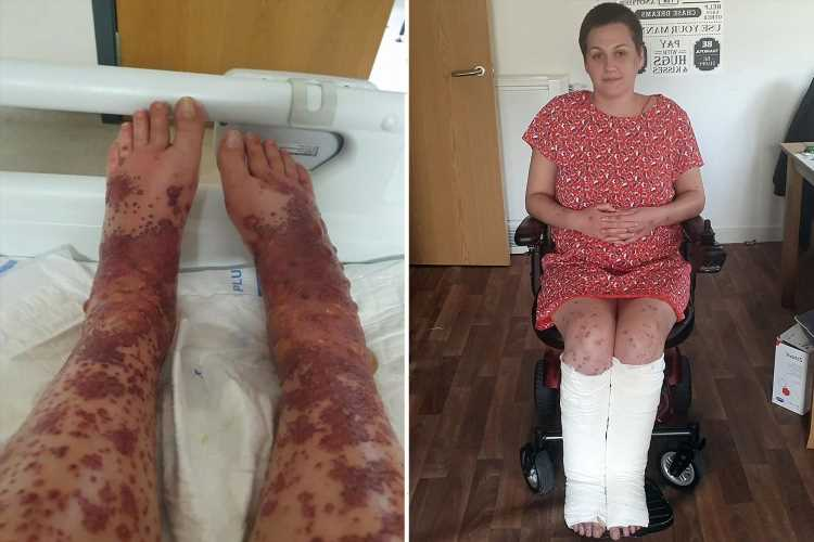 Mum's legs erupted in rash and blisters after Covid vaccine but urges others to get jab
