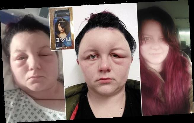Mother-of-four hospitalised for 36h after a reaction to home hair dye