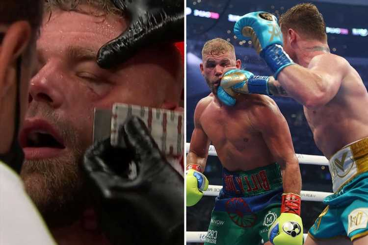 Billy Joe Saunders reveals he had FOUR fractures in his face and vows to fight again after defeat to Canelo Alvarez