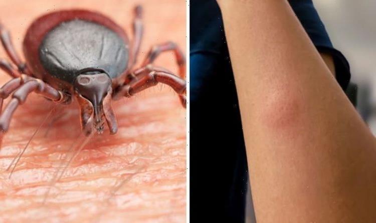 Lyme disease symptoms: How common is lyme disease in the UK?