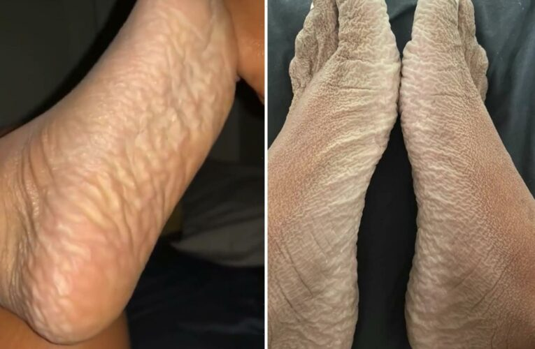 Woman begs for help as she shares photo of wrinkled feet from 16 HOUR long bath – & everyone's asking the same question