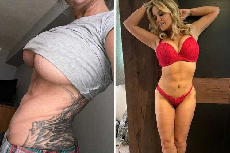 Kerry Katona reveals she's having a breast reduction after becoming 'deeply unhappy' with her body