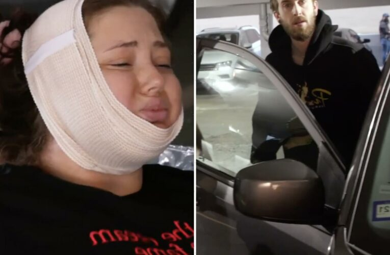 Teen Mom fans slam Jade Cline's baby daddy Sean Austin for 'assaulting' MTV producers after her painful plastic surgery