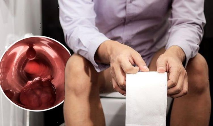 Bowel cancer symptoms: A 'change in the look' of your poo is a warning sign – visual clues
