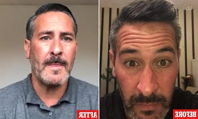 Lorry driver, 46, reveals why he get Botox