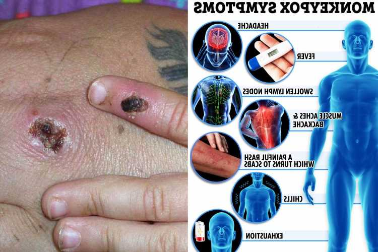 The 8 symptoms of monkeypox you need to know