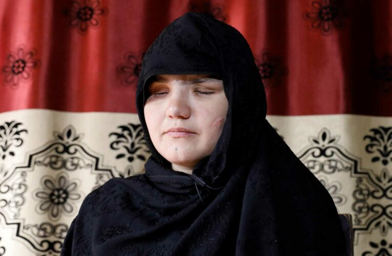 Woman who had eye gouged out by Taliban tells how terror group 'fed enemies to the dogs'