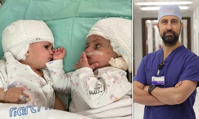 Israeli conjoined twins joined at the head separated by British doctor