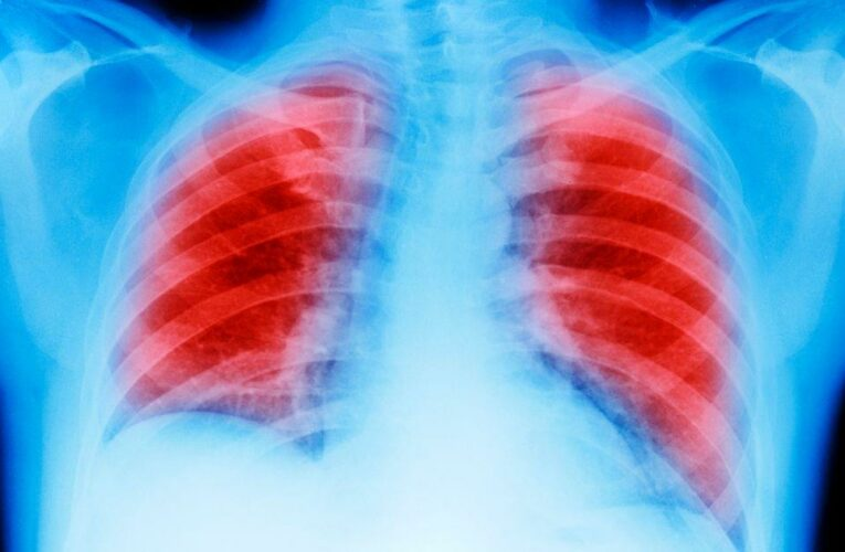 New AI can spot lung cancer a year early – with 97 percent accuracy