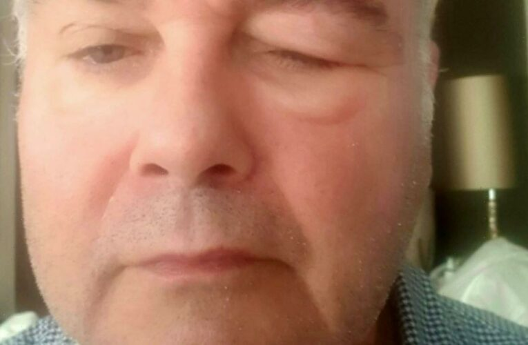 This Morning's Eamonn Holmes looks unrecognisable after horrifying shingles battle