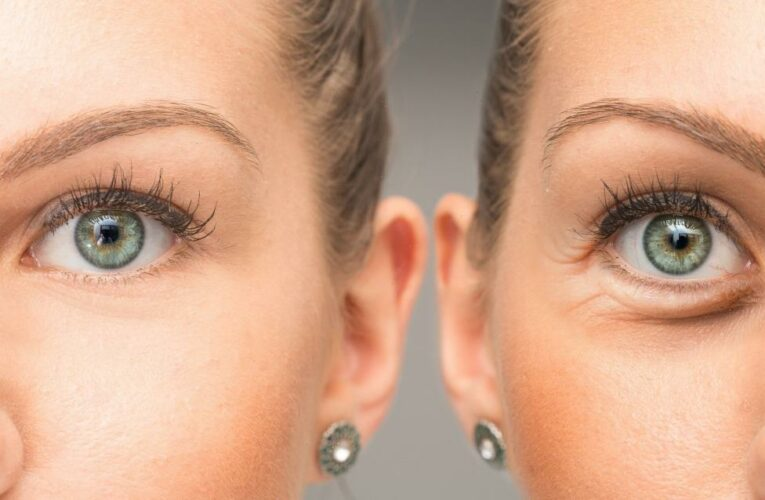This Eye Cream May Visually Cover and Treat Even the Worst Under-Eye Bags