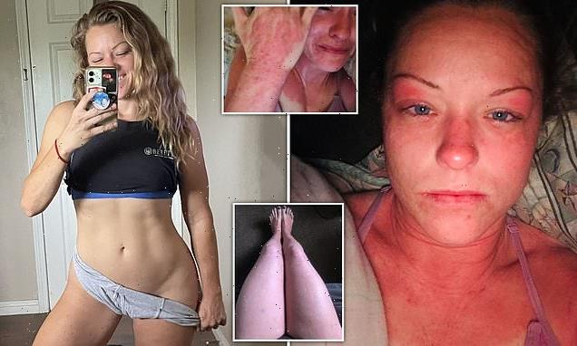 Woman claims her hormonal IUD left her looking like a burn victim